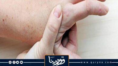 Photo of 10 نصائح لمرضى النقرس في عيد الأضحى