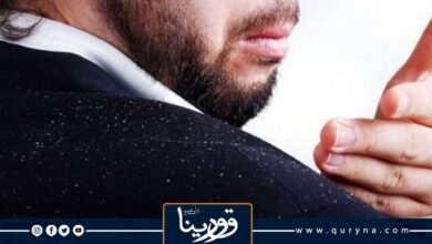 Photo of علاج قشرة الشعر الدهني ولماذا الرجال أكثر عُرضة للإصابة بها؟