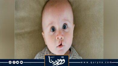 Photo of علاج عشرات الأطفال الليبيين من الشفة الأرنبية في مصر